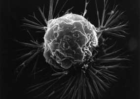 This is what a normal breast cancer cell imaged outside the body looks like.  This high-resolution image was taken with a scanning electron microscope. Image credit: National Institutes of Health via Wikimedia Commons. This image has been released into the public domain by its author.