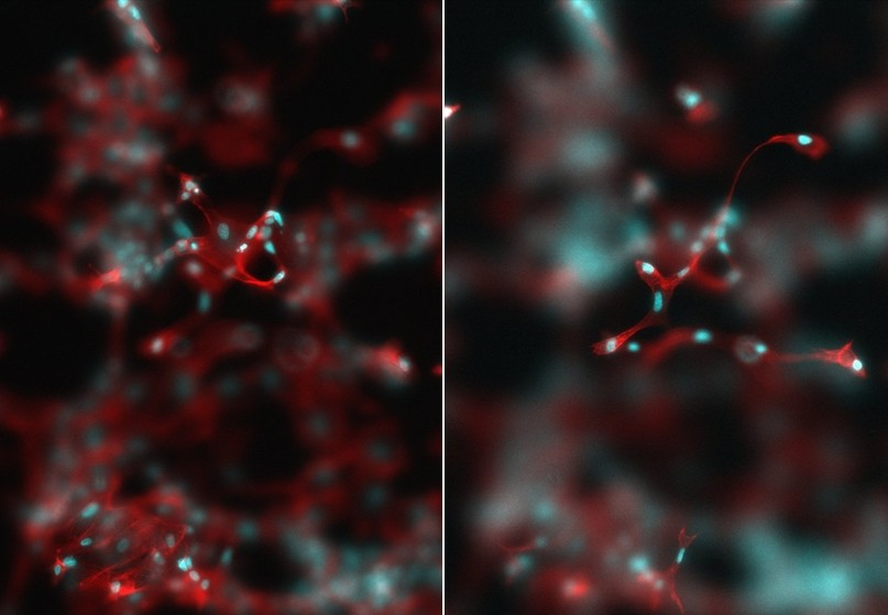 HUVEC cells stimulated with VEGF on a polymer surface. Credit of the image: Vladimira Moulisova.