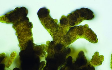 Cyanobacterial cells  http://www.concrete-online.co.uk/bacteria-see-by-manipulating-light-like-as-does-a-human-eye/