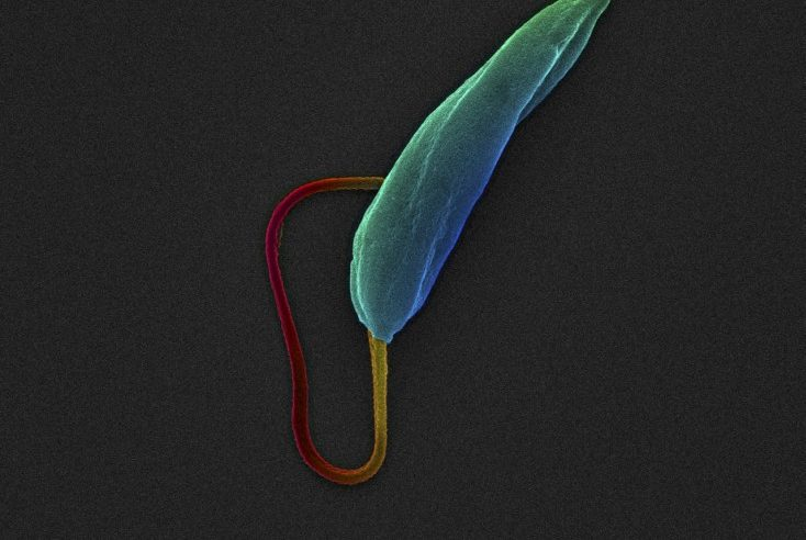Leishmania mexican parasite at its promastigote stage. Image Credit: Wellcome Trust Images